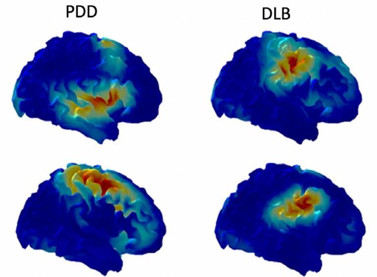 Illustrative image of brain activity patterns in MRI
