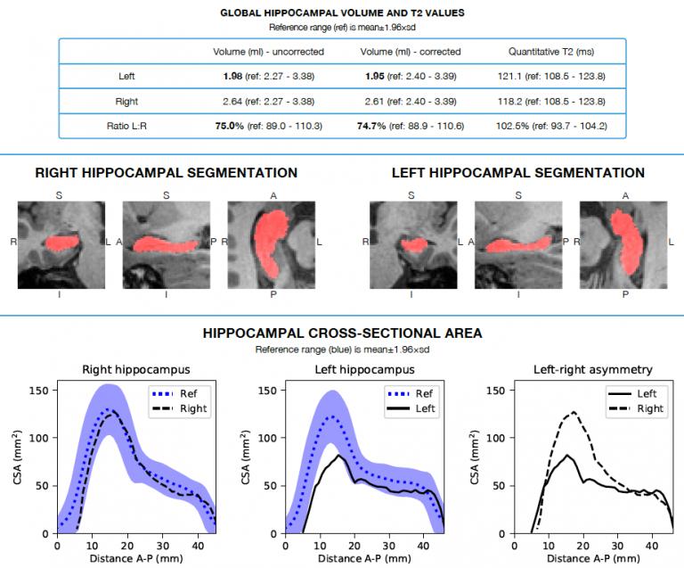 hippocampal sclerosis imaging