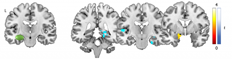 memory networks and temporal lobe epilepsy fMRI