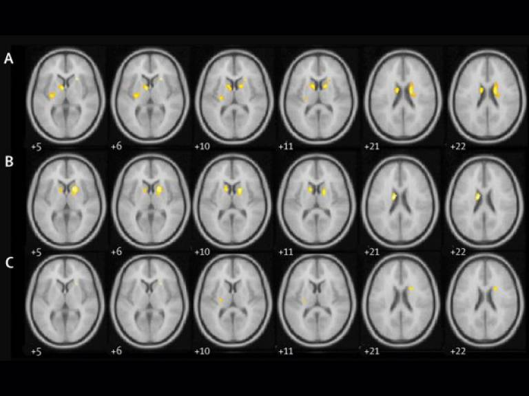 parkinsons brains DAT scans exenatide clinical trial