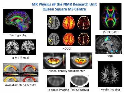 MS imaging techniques