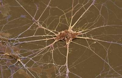 Primary spinal motor neuron in culture