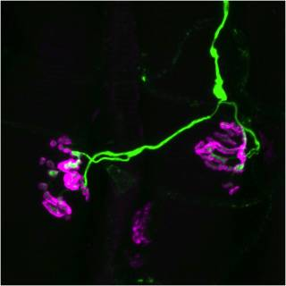 Pathological mouse neuromuscular junctions (NMJs)
