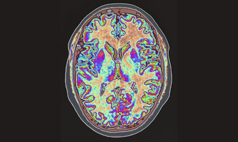 NDDR MRI brain scan image