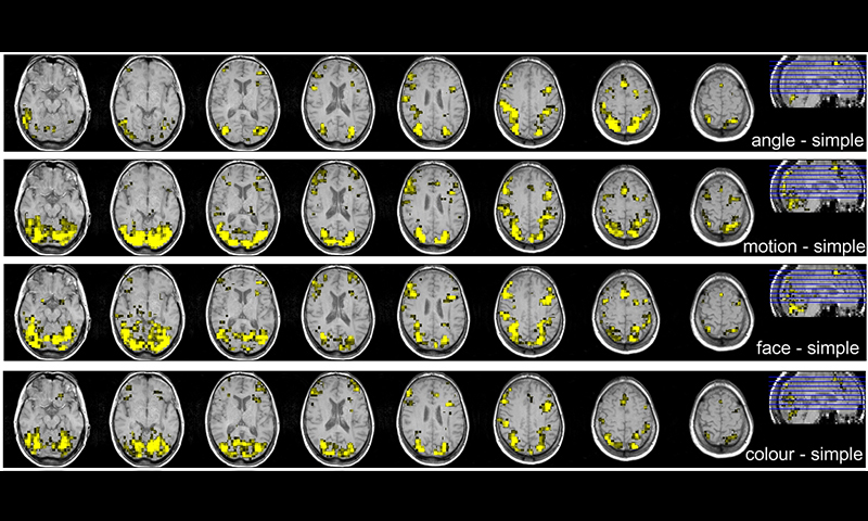 Trial activations my MRI scan