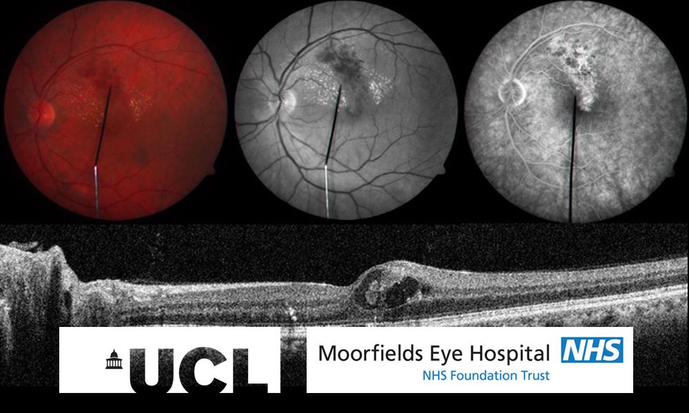 Retinal disease online course