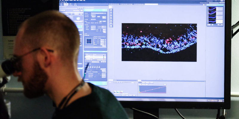 Imaging work at the UCL Institute of Ophthalmology