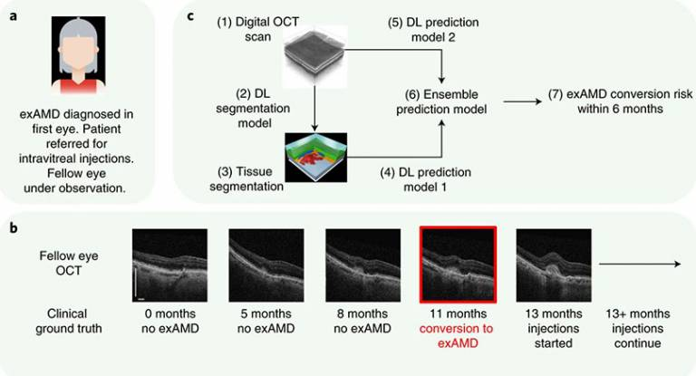 Clinical set up and proposed system for predicting conversion to wet age-related macular degeneration using deep learning