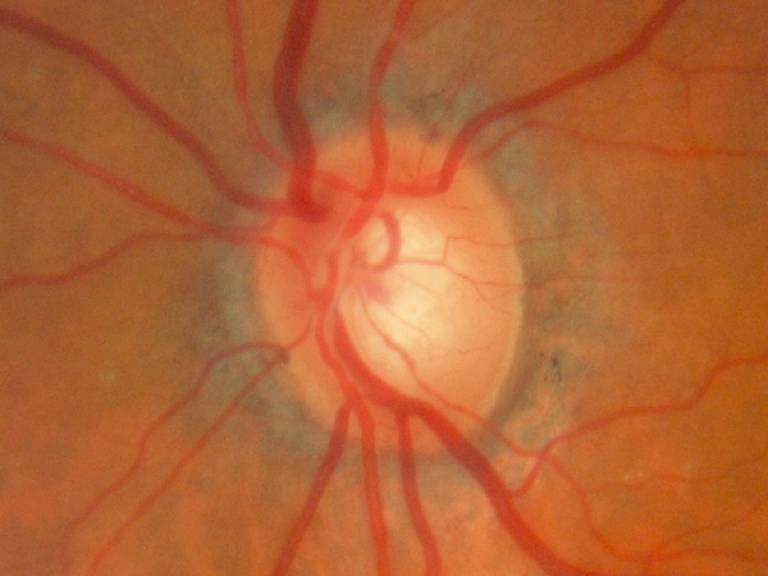 Optic nerve with glaucoma