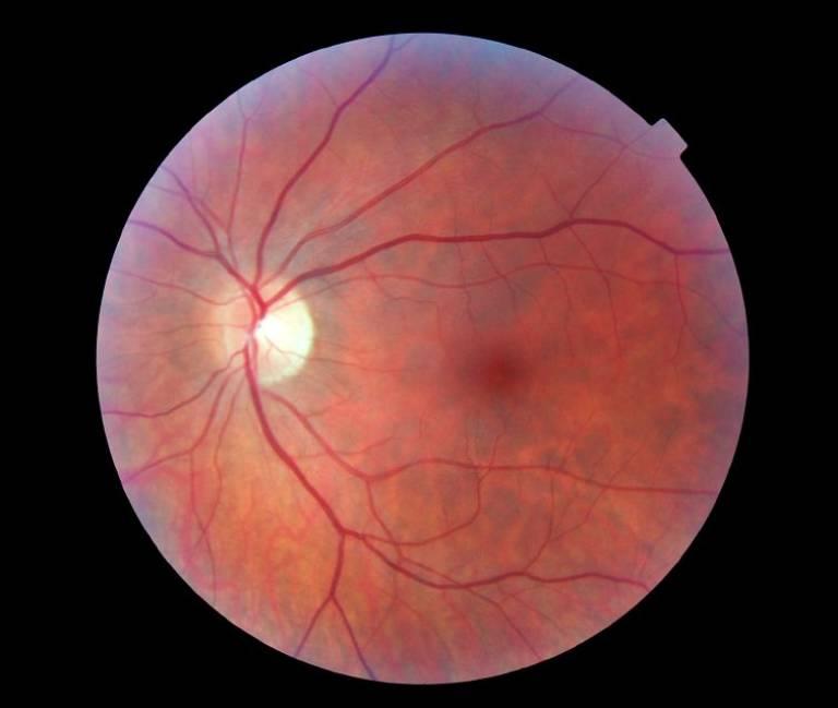 A healthy retina…