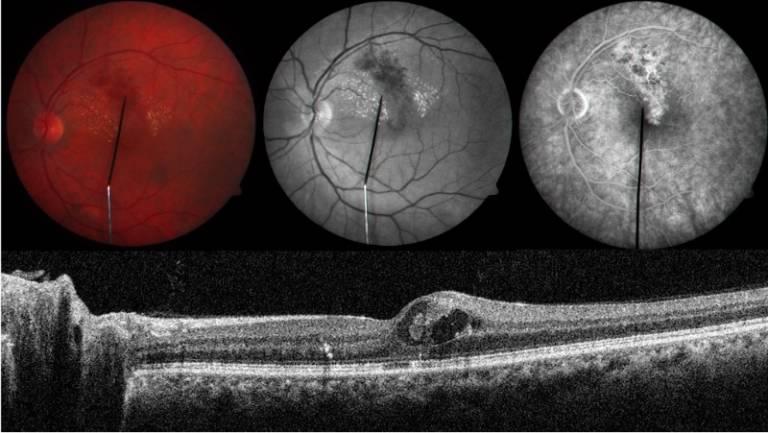 Retinal disease…