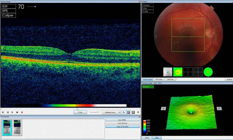Analysing an OCT scan of the right eye (Credit: Moorfields Eye Hospital)