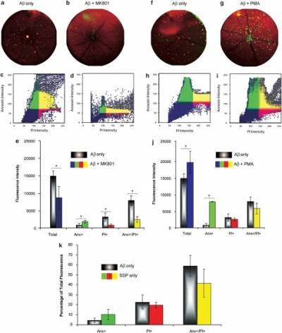Neurodegeneration - fig 8