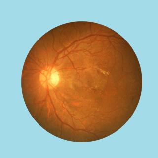 image of an eye scan