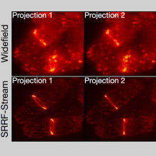 Super resolution imaging of yeast cells