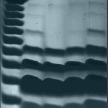cell extracts resolved by gel electrophoresis
