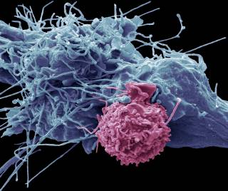 EM picture T cell attacking HCC