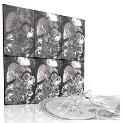MRI liver haemodynamics…