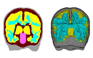 Infant brain model image