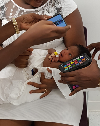 Baby in Ghana is checked for jaundice using a smartphone that takes a photo of the child's eye and analyses it