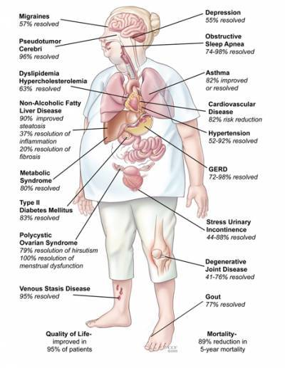 Summary of obesity research using a drawing of the human body