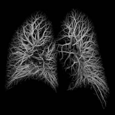Lungs Vessel Image X ray respiratory