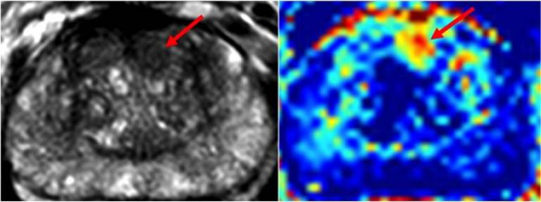 MRI Imaging of patient with biopsy proven cancer