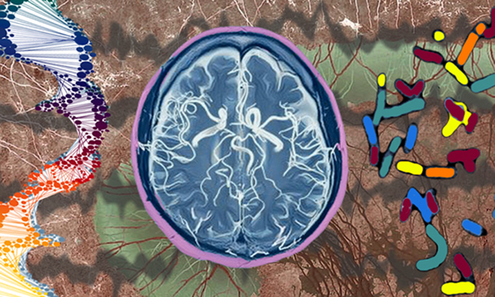 Mental health neuroscience department