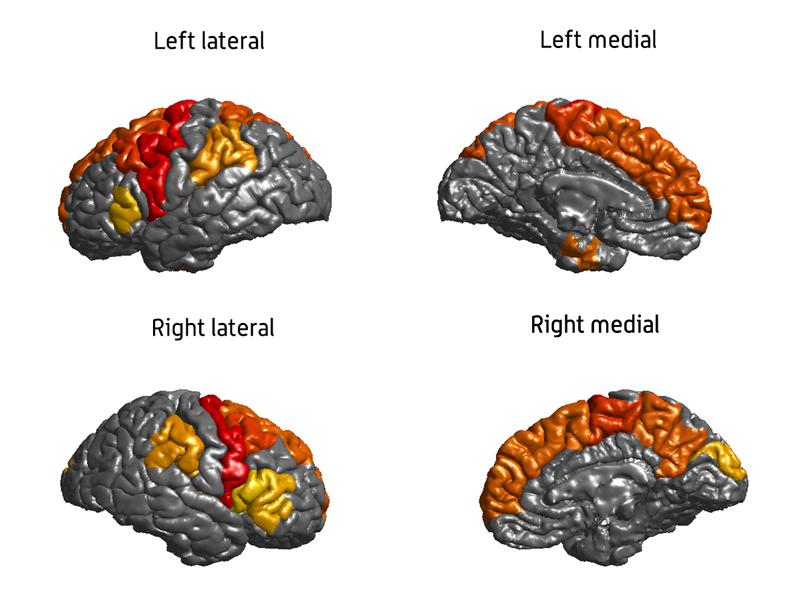 Epilepsy study image