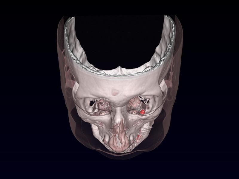 Eye prosthesis image