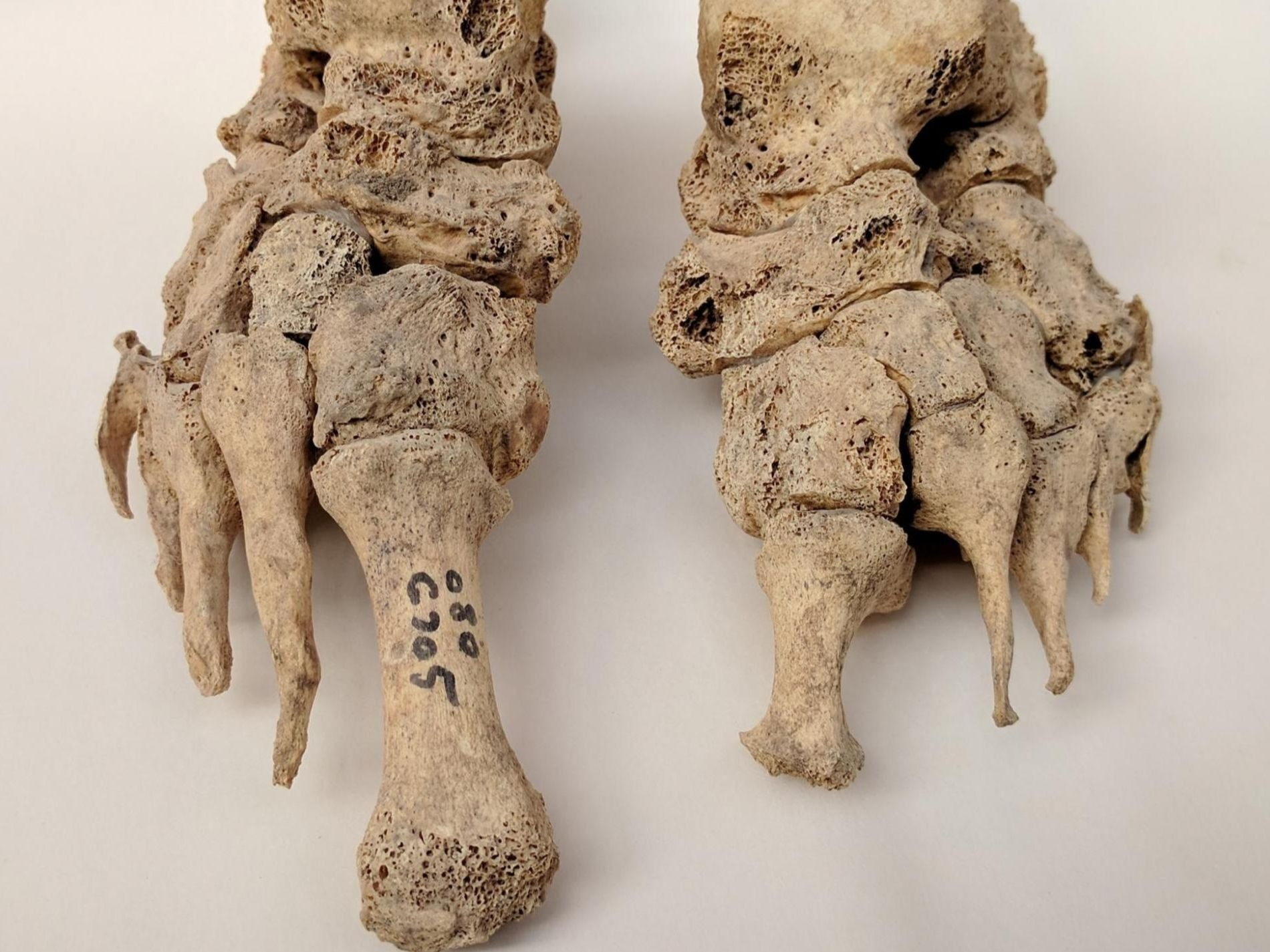 Skeletal remains showing evidence of leprosy