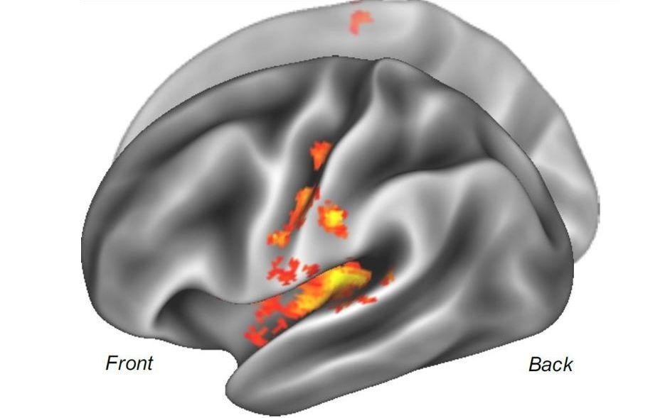 Phantom limb pain origins identified in brain stimulation therapy advance