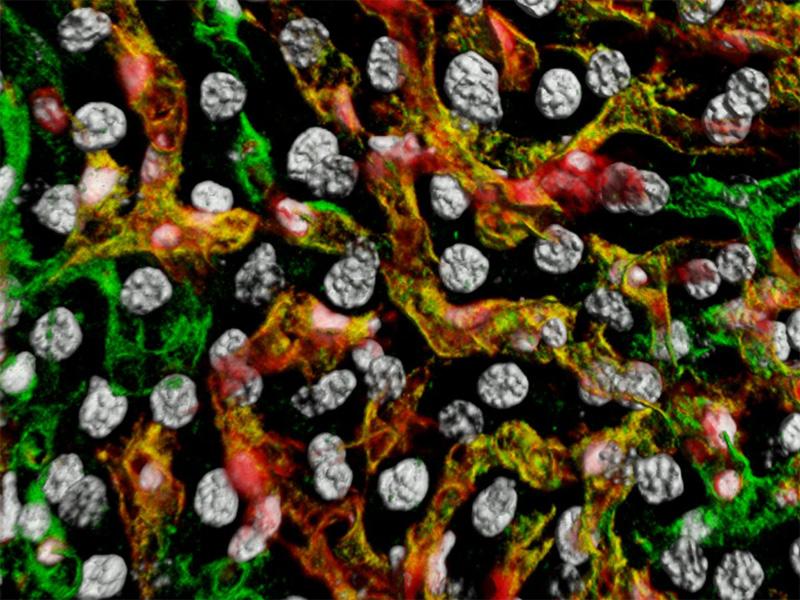 foetal liver blood vessels