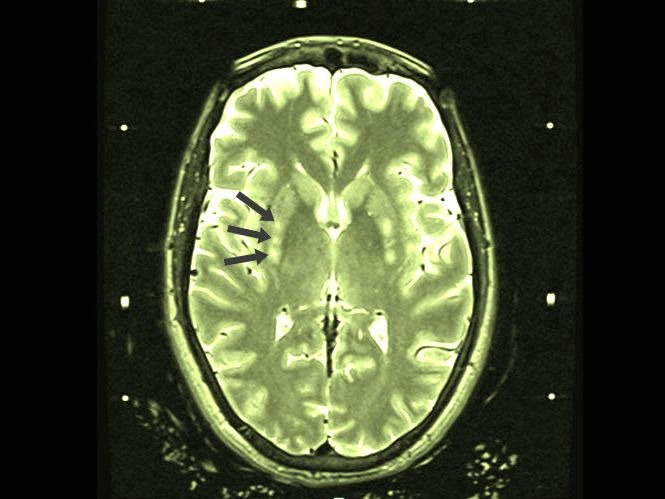 MRI scan of brain with arrows identifying where gene therapy was injected