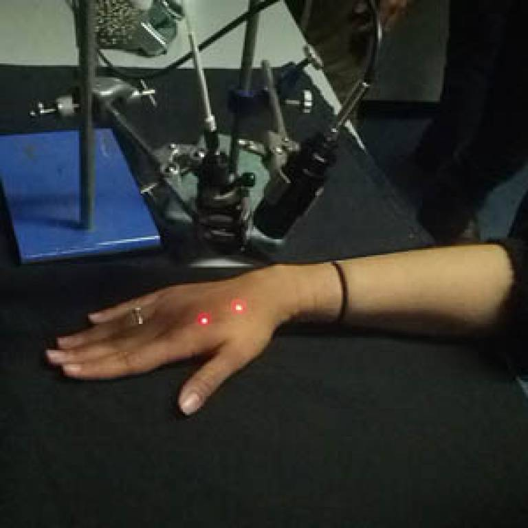 Image of a similar experiment where the hand was stimulated by 'pinprick' laser pain pulses