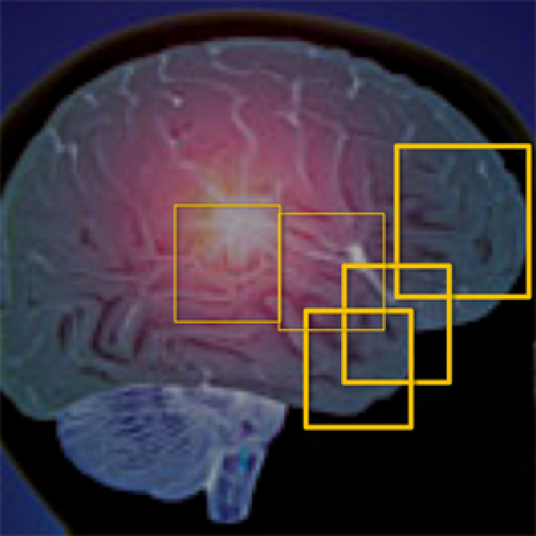 Frontotemporal Dementia map