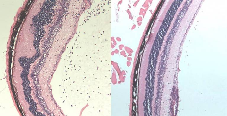 Image showing damage caused by uveitis in the untreated mouse eye (left) and the treated eye (right)