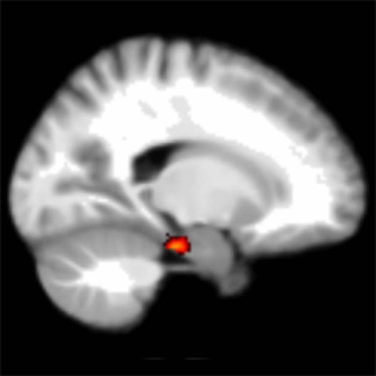 Homing signal in the brain