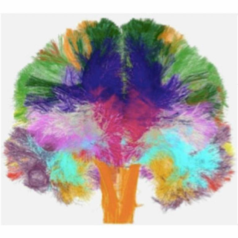 Brain connectivity atlas