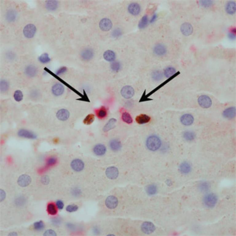 Magnified image of liver sample from Hepatitis B patient showing suppressor cells (brown) approaching T cells (red)