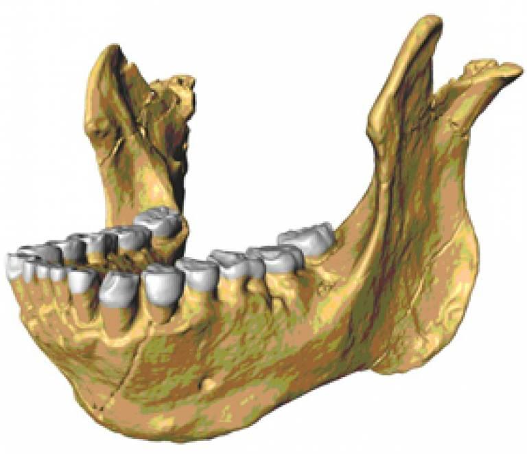 Kenyan fossil jaw