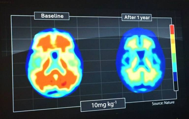 MRI scan showing brain changes in dementia