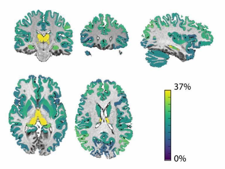 MS brain imaging