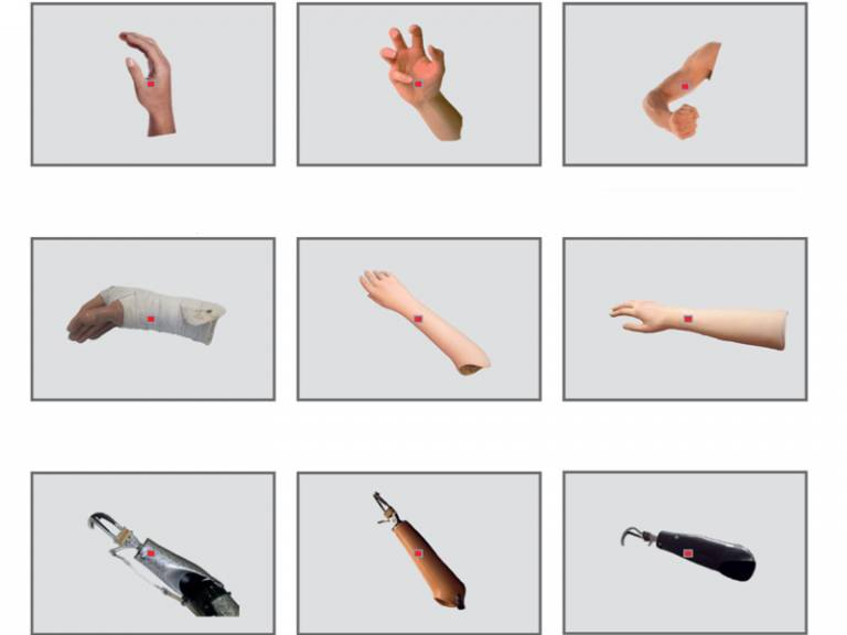 Prosthesis and hand images