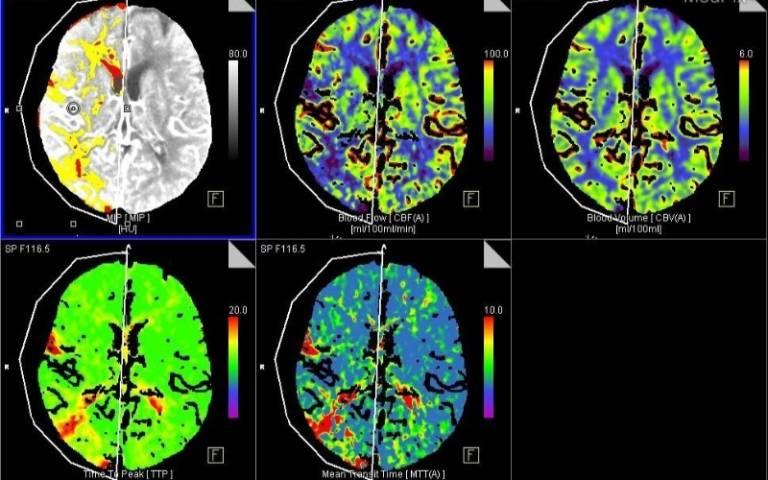 CT brain imaging of acute ischemic stroke