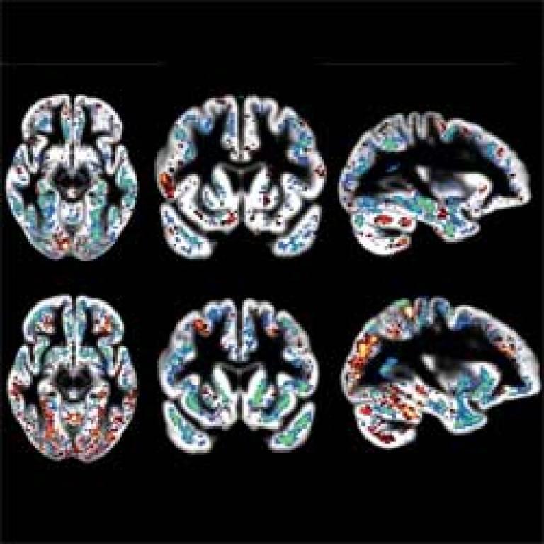 alzheimers brain scans