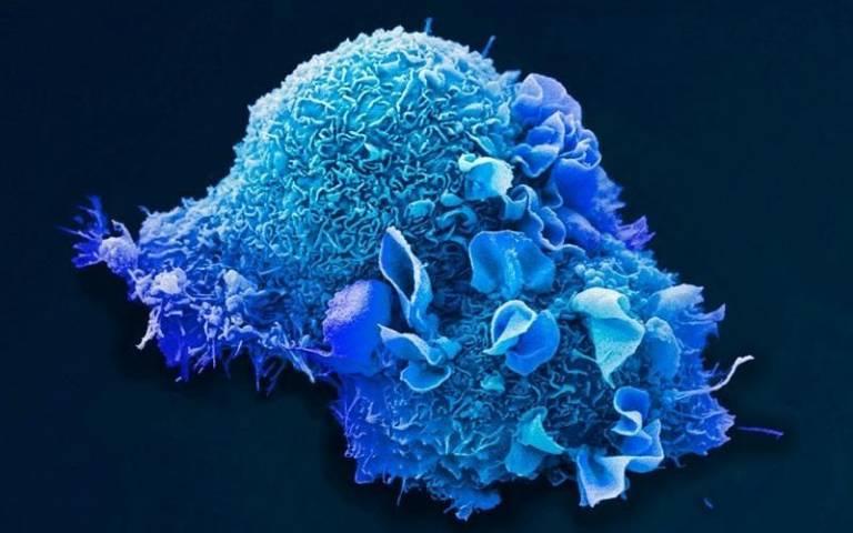 Lung cancer cell, credit: Anne Weston, EM STP