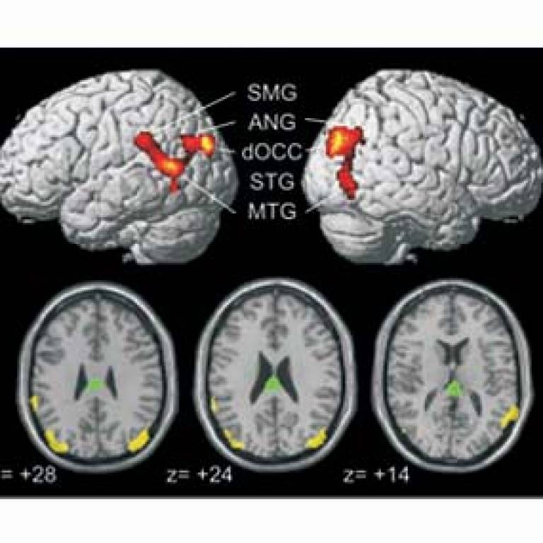 The regions where the brain had grown after learning to read