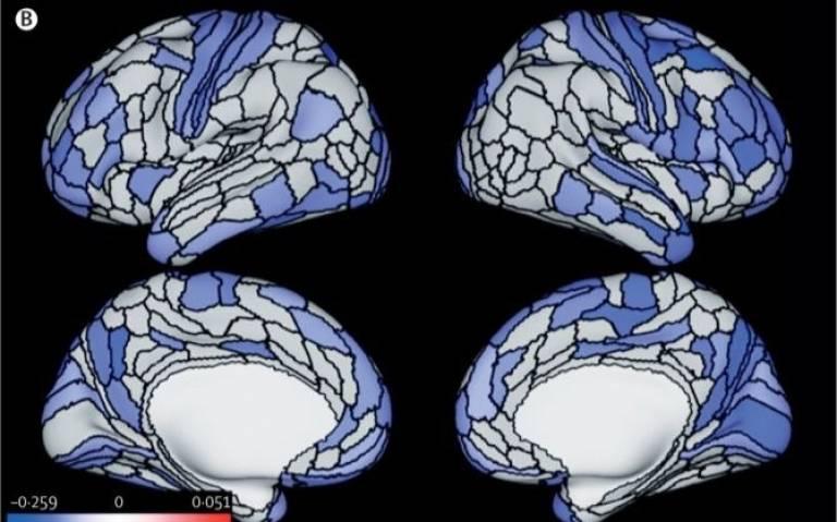 Brain scan composite