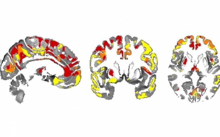 Iron in brain